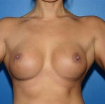 Breast Augmentation: Before & After Photos