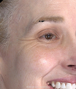 Injectable Facelift