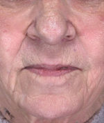 Jowl & Jaw Line Facelift: Before & After Photos